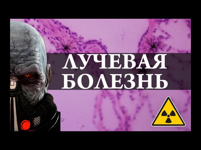Лучевая болезнь Радиация Химия просто