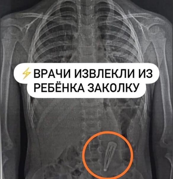 ⚡ Врачи эндоскопического отделения Городской больн...